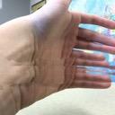 Hand 100